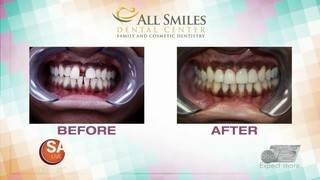 Get a PERFECT smile without hassle of braces