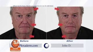 Get 50% off Plexaderm Skincare