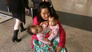 Conjoined twins flown from Bhutan to Australia for operation