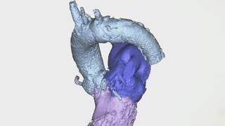 Hearts at risk: Planning heart surgery with new 3D models