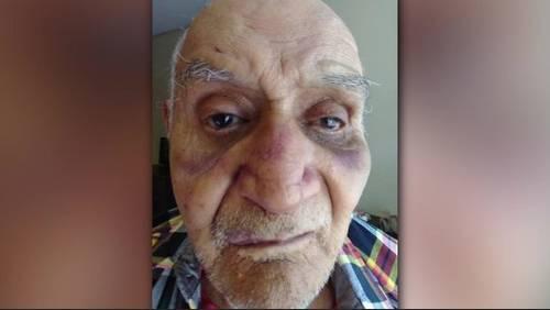 Man beaten at nursing home on day before 84th birthday