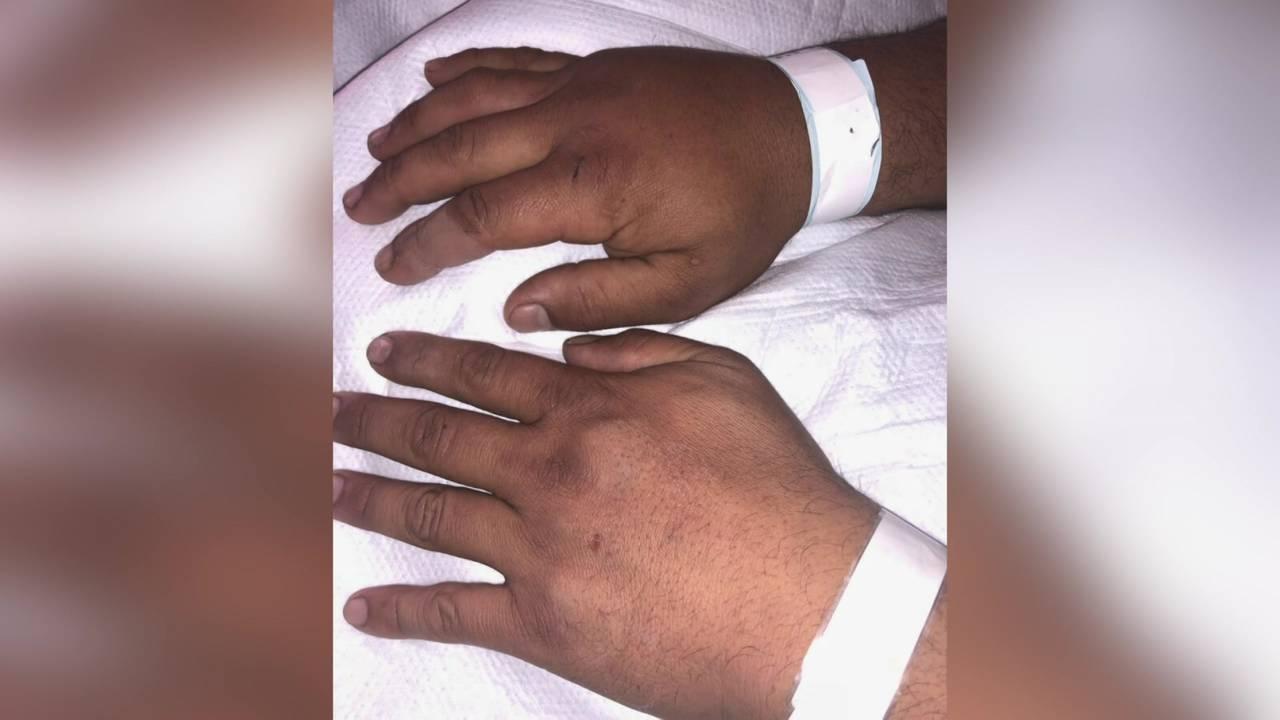cobra bite hands