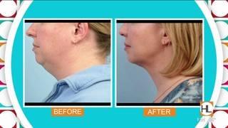 New treatment for minimally invasive body contouring