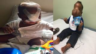 Baptist Hospital helps save baby born in Haiti with skull defect