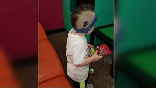 Boy's cochlear implant charger stolen during vehicle break-in