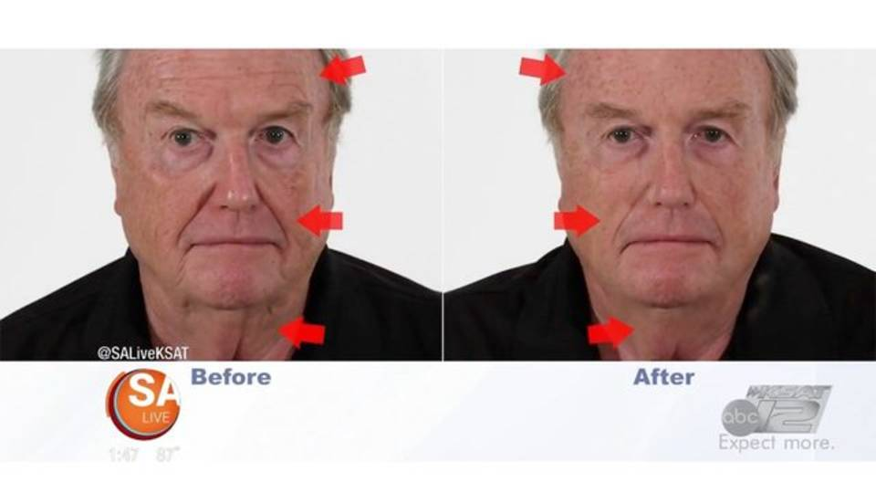 before and after pic 2_plexaderm.jpg