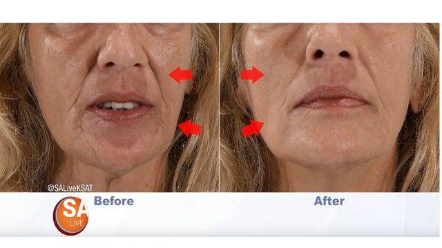 Before and after pic 1_plexaderm.jpg