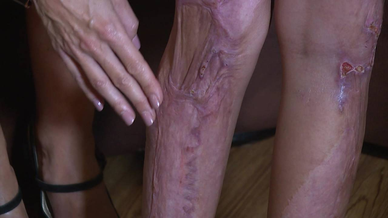 Ma'kayla Dickerson scars from daycare burns