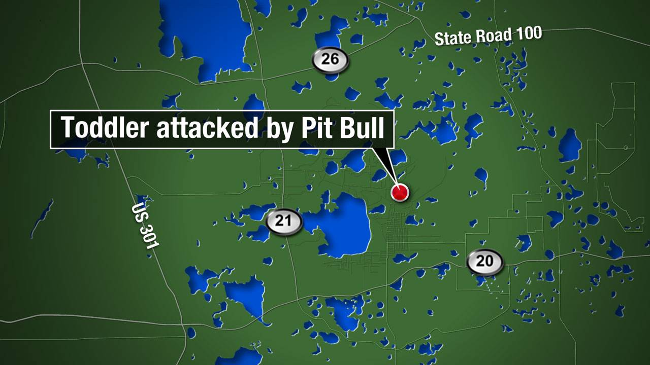 Map - Hawthorne toddler mauled by pit bull