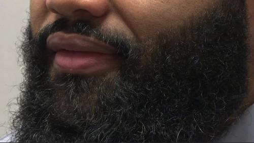 How beards can help with allergies