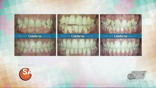 Braces starting at just $75 a month!