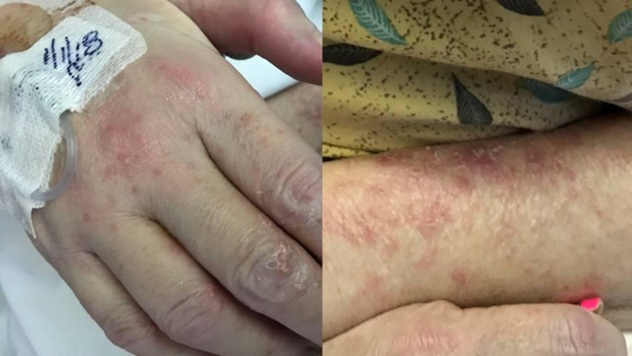 Kindred Hospital rashes