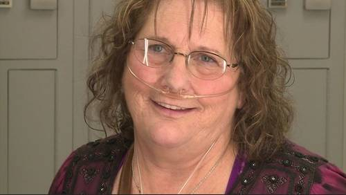 Spencer Solves It: Helping veteran get her smile back