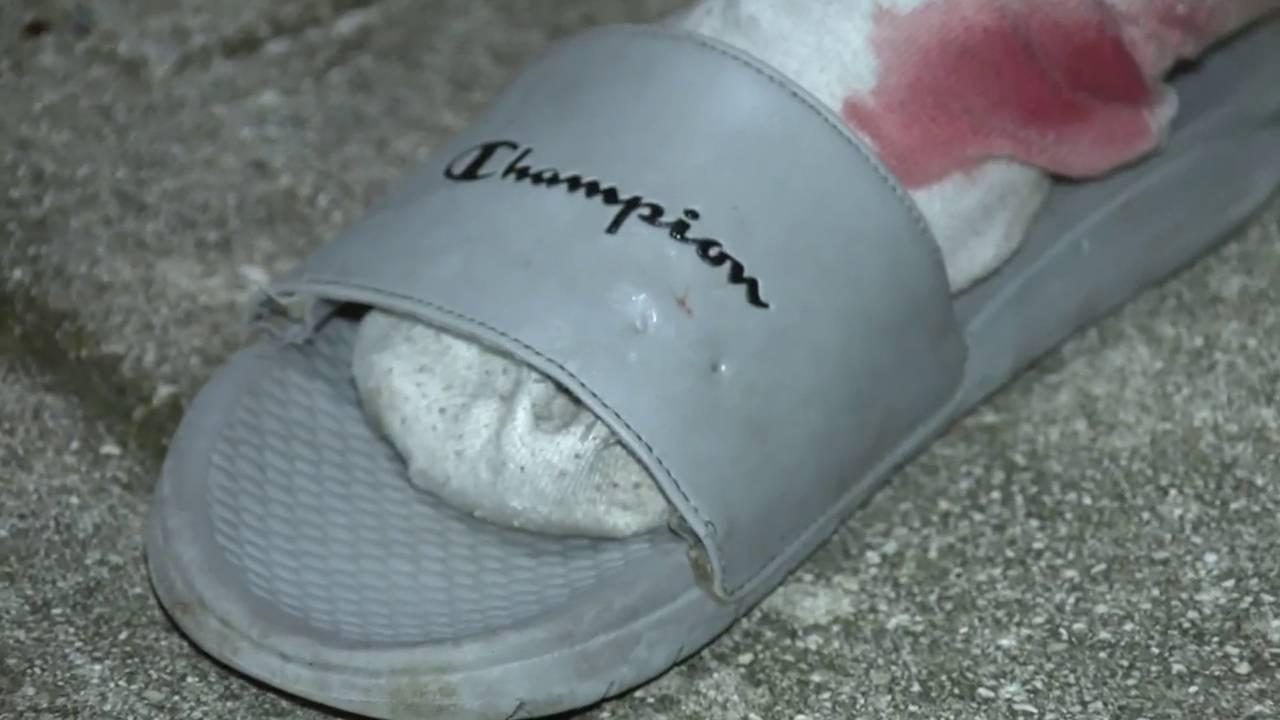 Frank Beaver's Champion slide has dog bite marks on it
