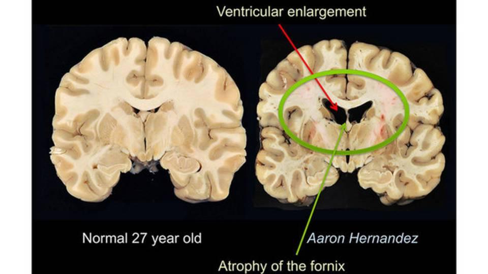 brain-scan_1534806782871.jpg