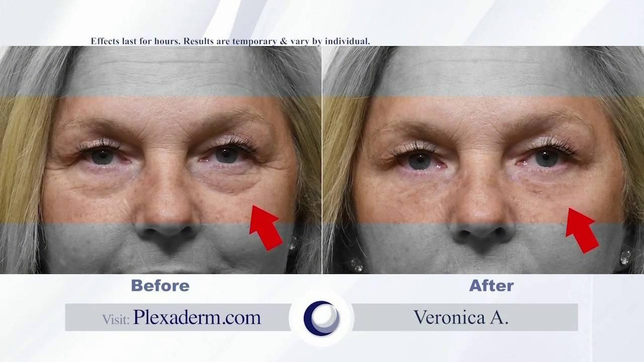 Get rejuvenated skin in minutes with Plexaderm  SA Live  KSAT 1220180821151413.jpg
