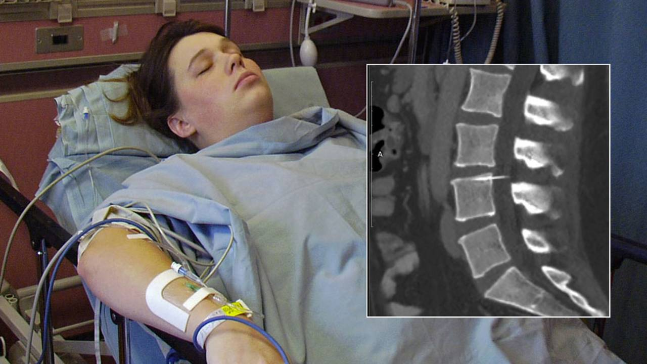 Amy+Bright-with-xray-inset_1521748960421.jpg
