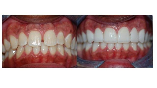 before and after teeth_.jpg