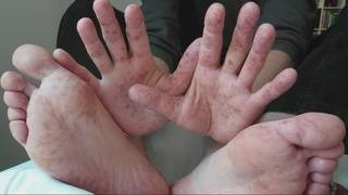 Hand, foot and mouth disease warning to parents
