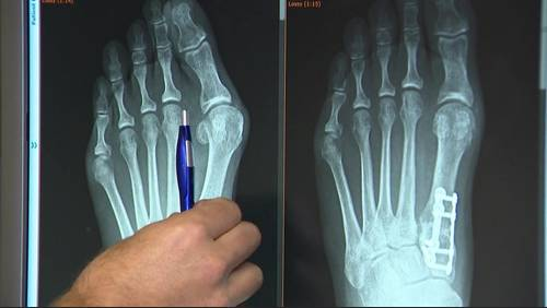 Procedure aims to remove bunions forever