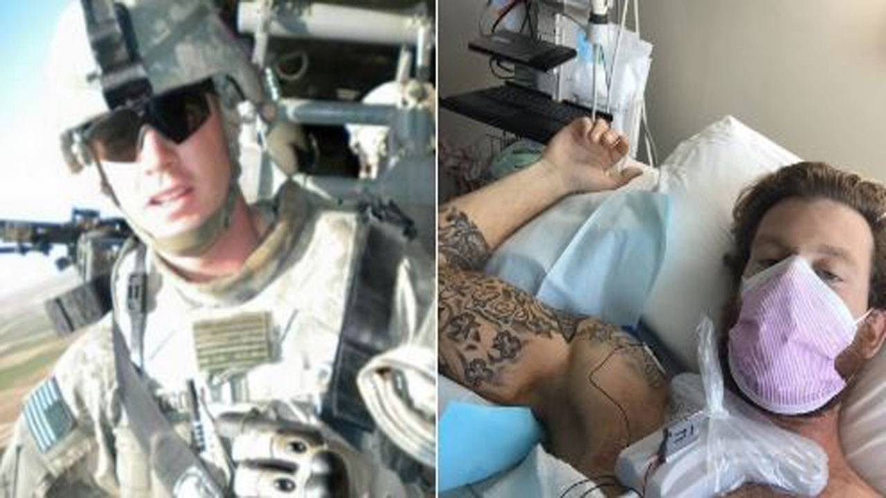 ryan goggins before and during treatment