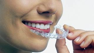 The hottest stock of the year: Invisalign