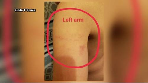 Mother claims Pasadena ISD elementary school administrator bruised her 6-year-old son