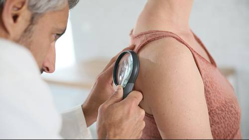 Skin care: When to treat or remove skin tags, moles or dark spots