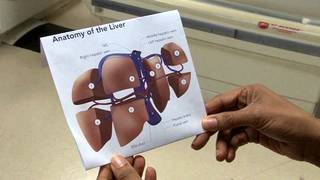 Liver disease deaths spike among young Americans