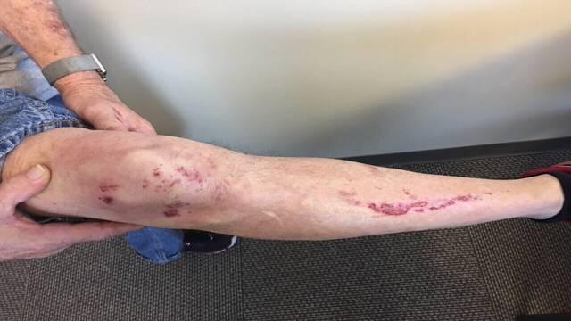 William Lodge's injuries