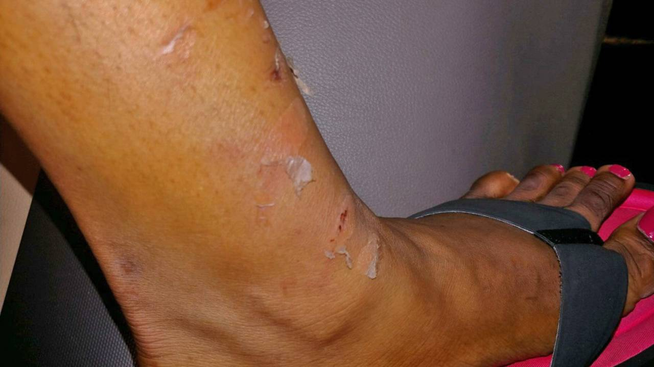 Inmates-injuries2_1530829911977.jpg