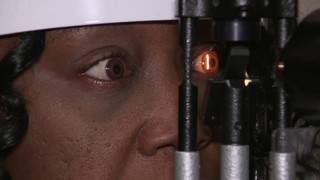 Vasular condition leads to sudden sight loss
