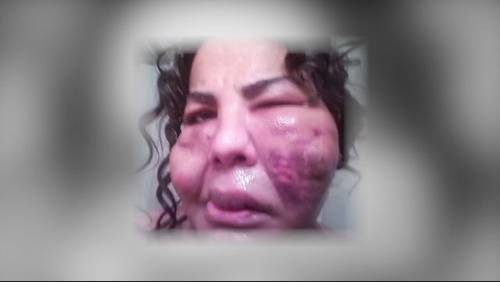 Women conned into dangerous plastic surgery in Houston hotel rooms