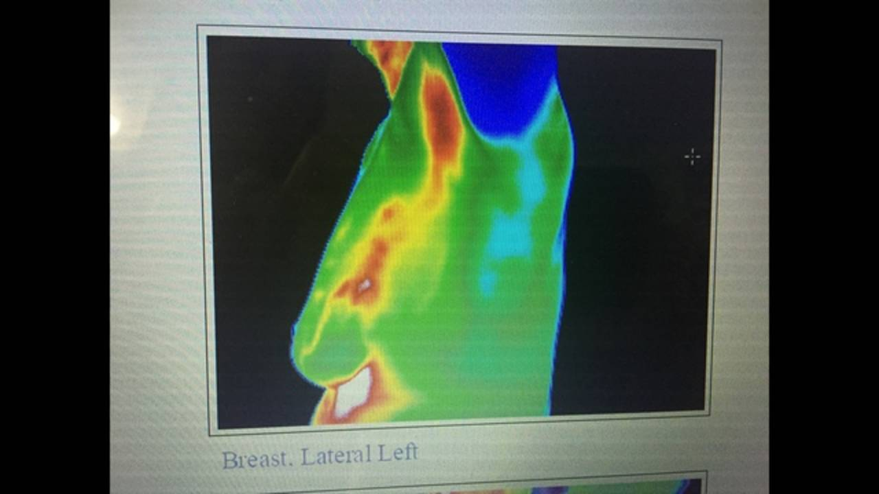 Breast Thermography_191680