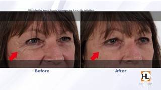 Reduce the appearance of under eye bags and wrinkles with one product