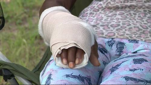 76-year-old woman says she was beaten with her own cane