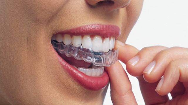 All Smiles clear braces. jpg