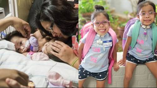 Conjoined twins separated at Texas Children's Hospital mark major milestone