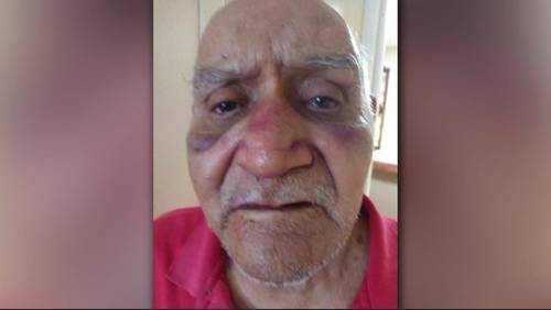 'My dad's not safe': Family of man beaten at nursing home seeks answers