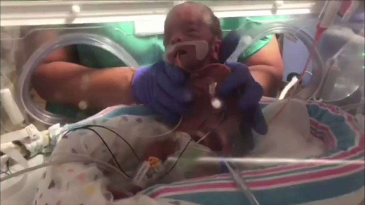 Baby born 3 months early