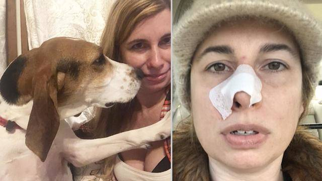Image result for Just Months After Being Rescued, Dog Sniffs Out Owner's Skin Cancer.