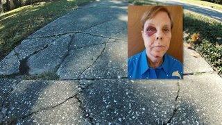 Crumbling sidewalk sends jogger to ER