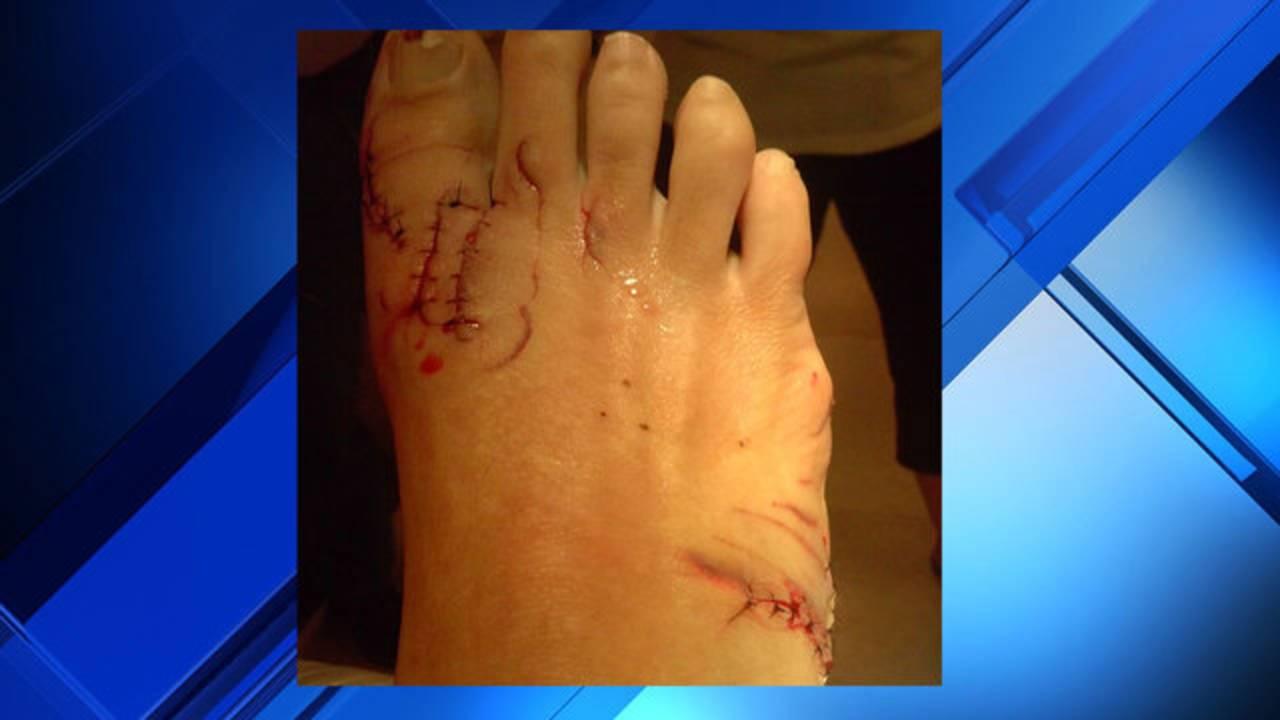 Kerry Keyton stitches