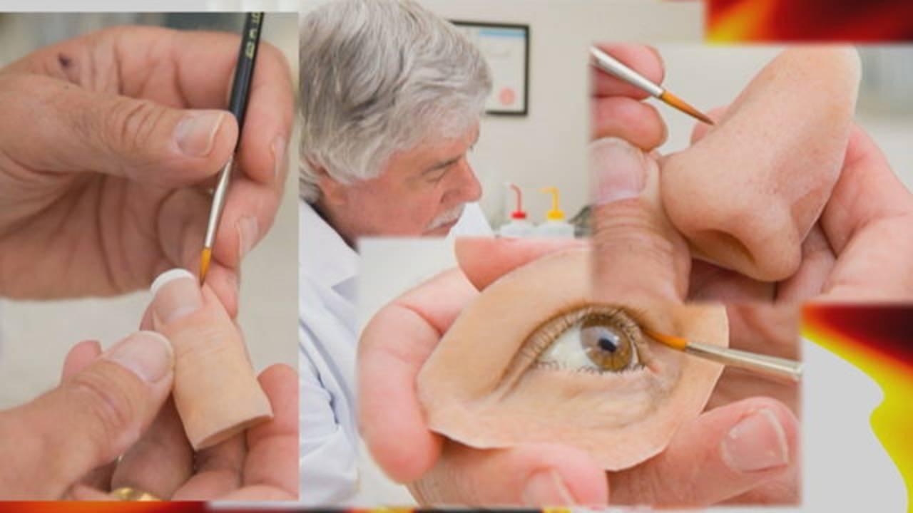 Robert Barron's prosthetics