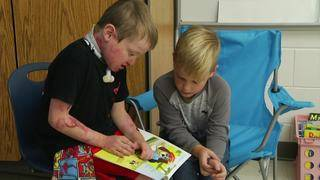 Third-grade boy helps take care of friend with genetic skin disorder
