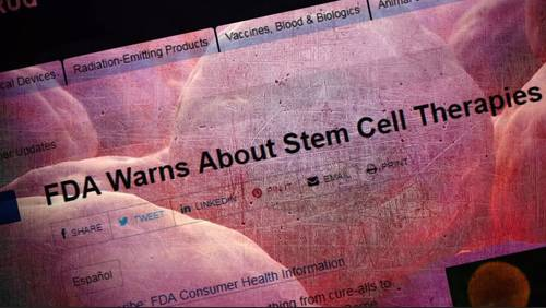 FDA: Stem cell treatment not approved for arthritis, chronic pain, anti-aging