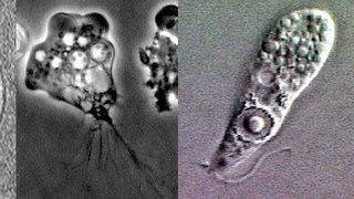 Brain-eating amoeba confirmed in New Jersey man's death