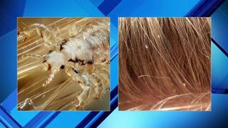 How to prevent and treat head lice