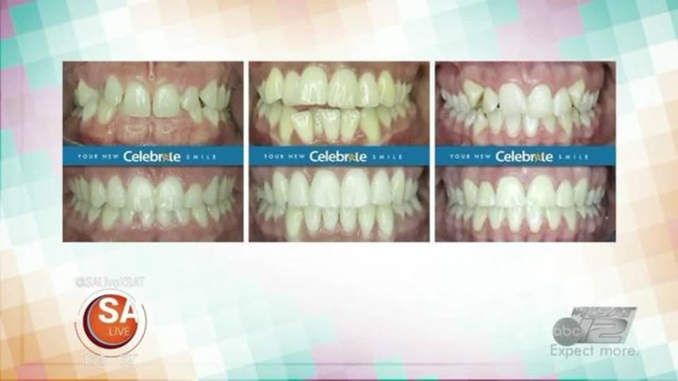 Celebrate Dental 4-220180402193451.jpg