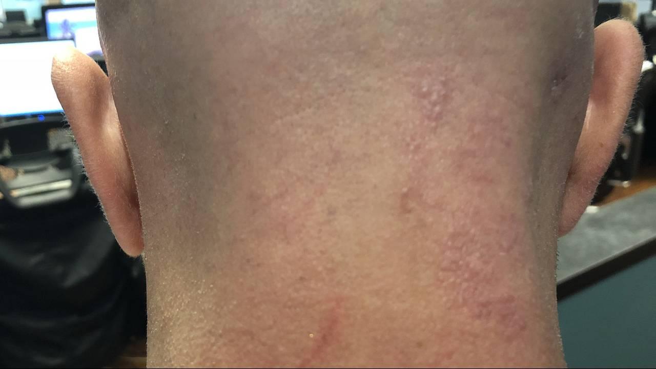 Scott-Shingles-healing_1542391725517.jpg